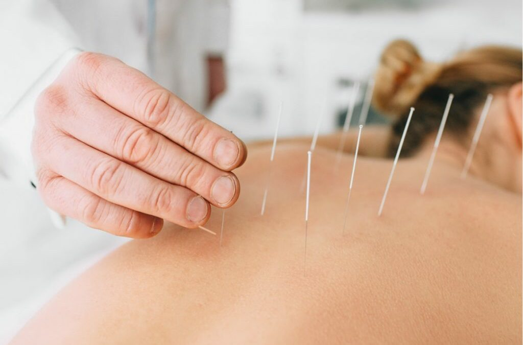 Dry Needling. What is it and what does it do?